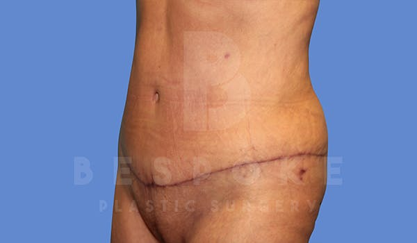 Tummy Tuck Gallery - Patient 5776277 - Image 4