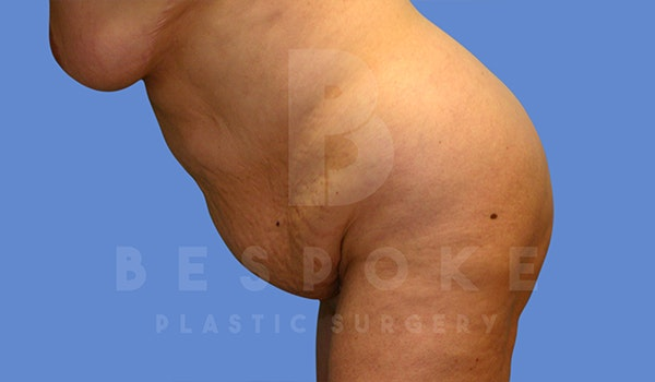 Tummy Tuck Gallery - Patient 5776277 - Image 5