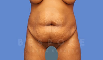 Tummy Tuck Gallery - Patient 5776279 - Image 1