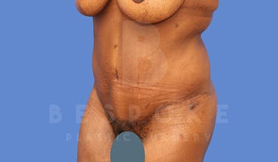 Tummy Tuck Gallery - Patient 5776278 - Image 4