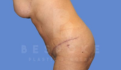 Tummy Tuck Gallery - Patient 5776277 - Image 6