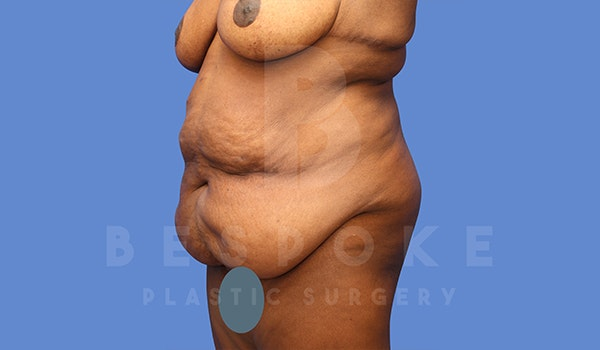 Tummy Tuck Gallery - Patient 5776278 - Image 5