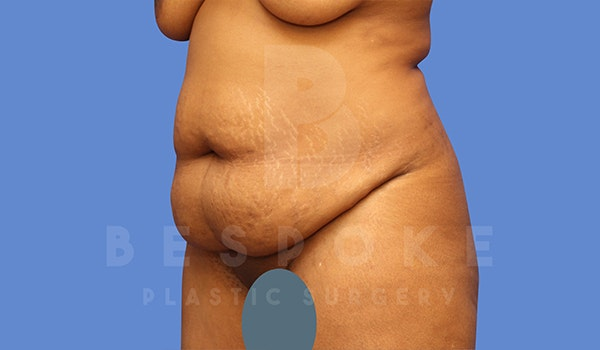 Tummy Tuck Gallery - Patient 5776279 - Image 3