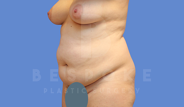 Tummy Tuck Gallery - Patient 5776280 - Image 28