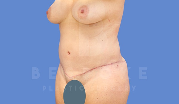 Tummy Tuck Gallery - Patient 5776280 - Image 2