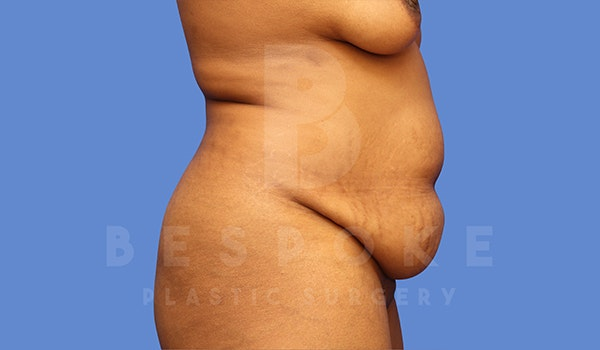 Tummy Tuck Gallery - Patient 5776279 - Image 5