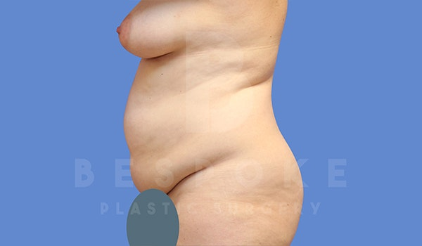 Tummy Tuck Gallery - Patient 5776280 - Image 3