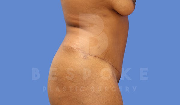 Tummy Tuck Gallery - Patient 5776279 - Image 6