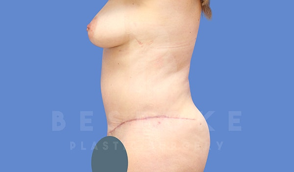 Tummy Tuck Gallery - Patient 5776280 - Image 4