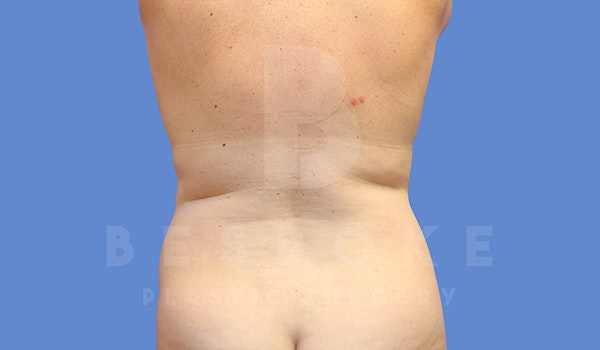Tummy Tuck Gallery - Patient 5776280 - Image 5
