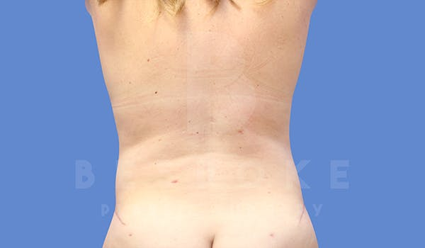 Tummy Tuck Gallery - Patient 5776280 - Image 6