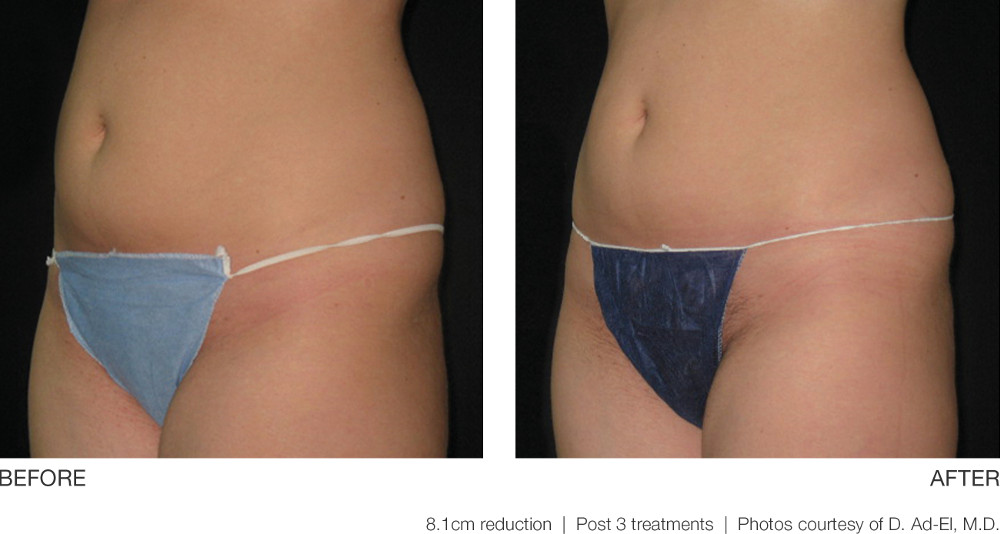 UltraShape® Before and After Pictures Richmond, VA