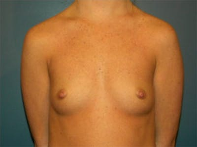 Breast Augmentation Gallery - Patient 4594784 - Image 1