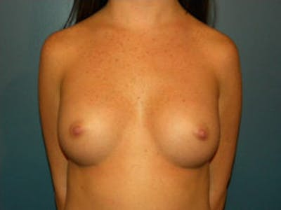 Breast Augmentation Gallery - Patient 4594784 - Image 2
