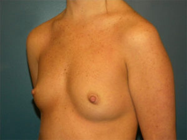Breast Augmentation Gallery - Patient 4594784 - Image 3