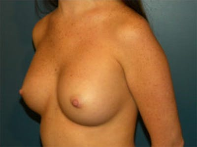 Breast Augmentation Gallery - Patient 4594784 - Image 4