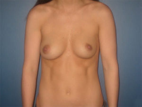 Breast Augmentation Gallery - Patient 4594785 - Image 1