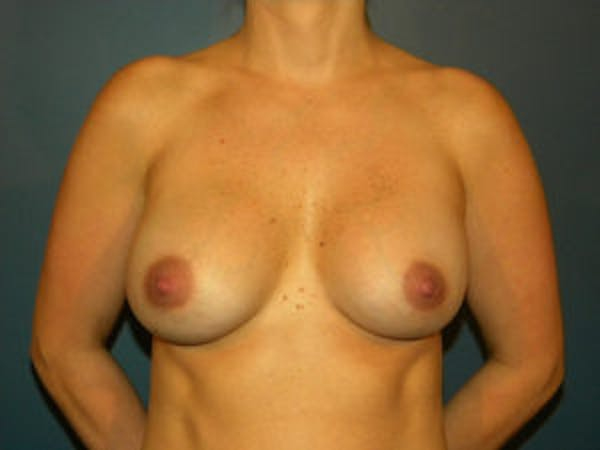 Breast Augmentation Gallery - Patient 4594785 - Image 2