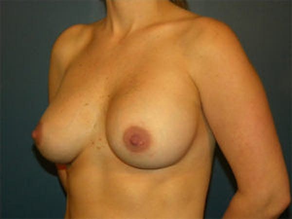 Breast Augmentation Gallery - Patient 4594785 - Image 4