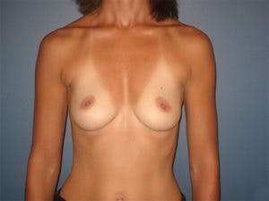 Breast Augmentation Gallery - Patient 4594796 - Image 1