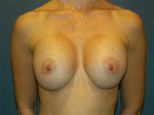 Breast Augmentation Gallery - Patient 4594796 - Image 2