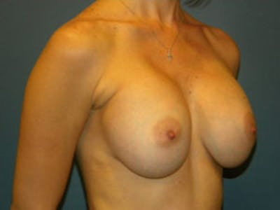 Breast Augmentation Gallery - Patient 4594796 - Image 4