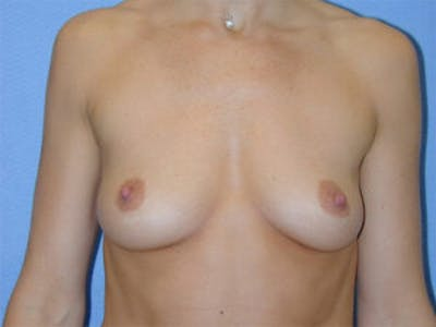 Breast Augmentation Gallery - Patient 4594798 - Image 1