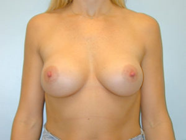 Breast Augmentation Gallery - Patient 4594798 - Image 2