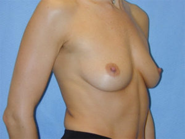 Breast Augmentation Gallery - Patient 4594798 - Image 3