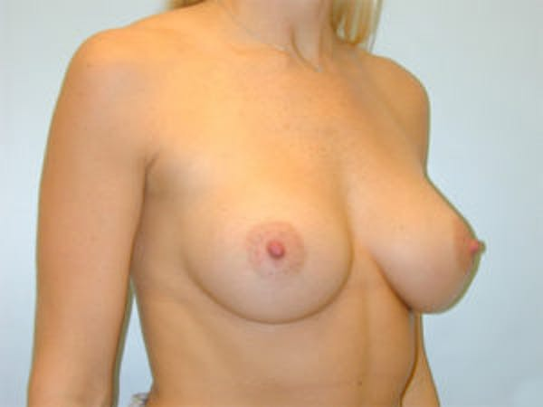 Breast Augmentation Gallery - Patient 4594798 - Image 4