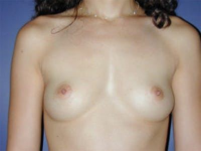 Breast Augmentation Gallery - Patient 4594800 - Image 1