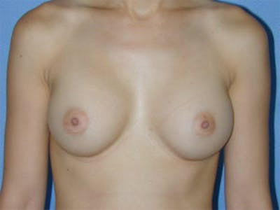 Breast Augmentation Gallery - Patient 4594800 - Image 2
