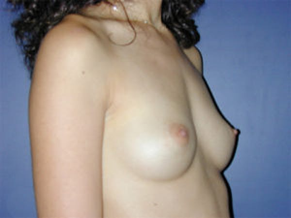 Breast Augmentation Gallery - Patient 4594800 - Image 3