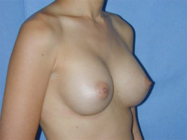 Breast Augmentation Gallery - Patient 4594800 - Image 4