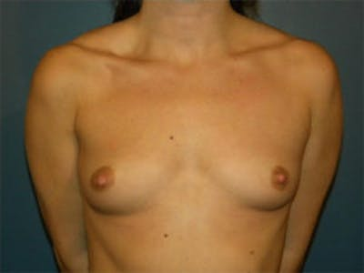 Breast Augmentation Gallery - Patient 4594802 - Image 1