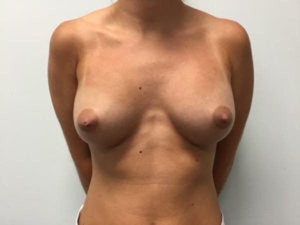 Breast Augmentation Gallery - Patient 4594802 - Image 2
