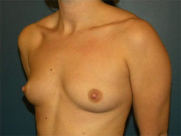 Breast Augmentation Gallery - Patient 4594802 - Image 3
