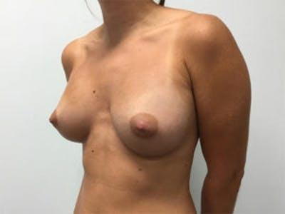 Breast Augmentation Gallery - Patient 4594802 - Image 4
