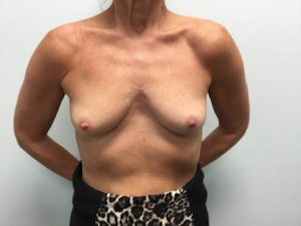 Breast Augmentation Gallery - Patient 4594803 - Image 1