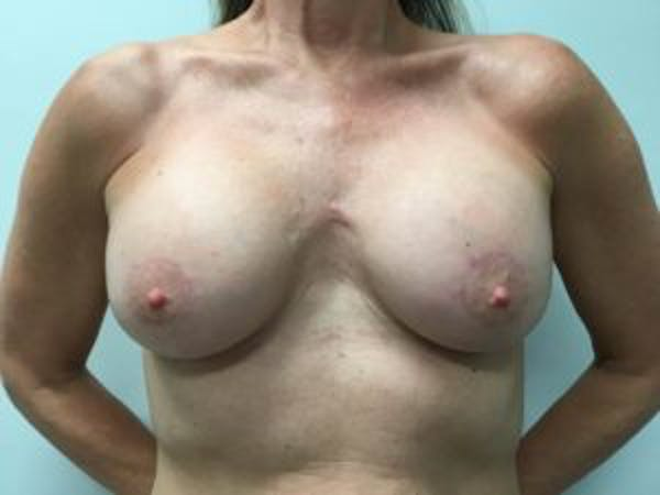 Breast Augmentation Gallery - Patient 4594803 - Image 2
