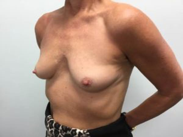 Breast Augmentation Gallery - Patient 4594803 - Image 3