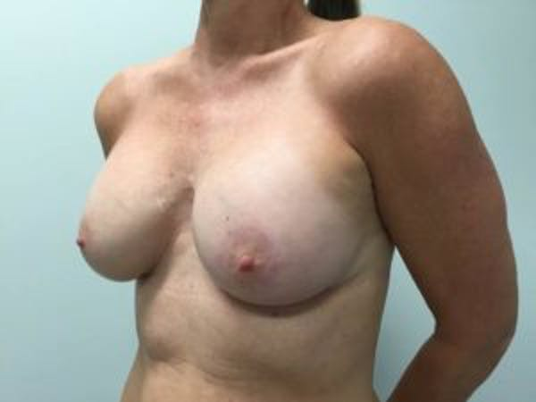 Breast Augmentation Gallery - Patient 4594803 - Image 4