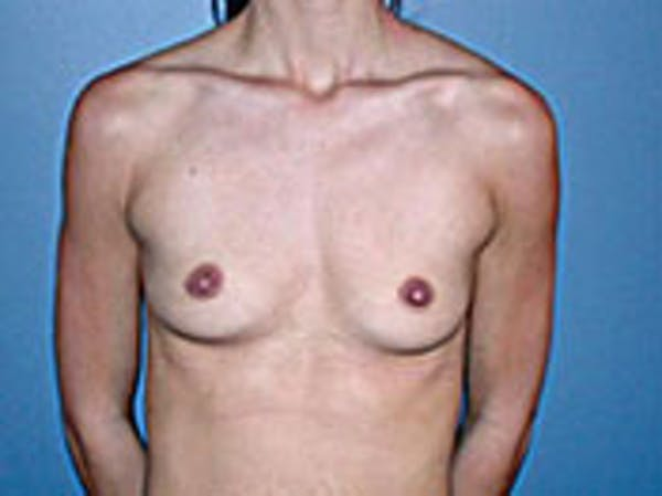 Breast Augmentation Gallery - Patient 4594804 - Image 1