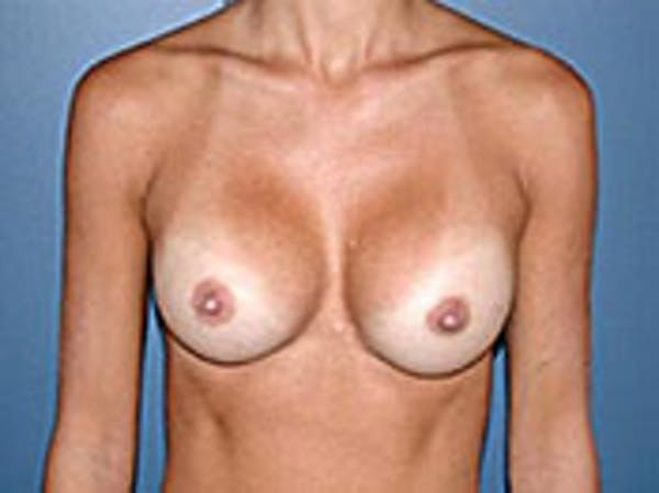 Breast Augmentation Gallery - Patient 4594804 - Image 2