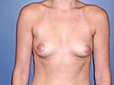 Breast Augmentation Gallery - Patient 4594805 - Image 1