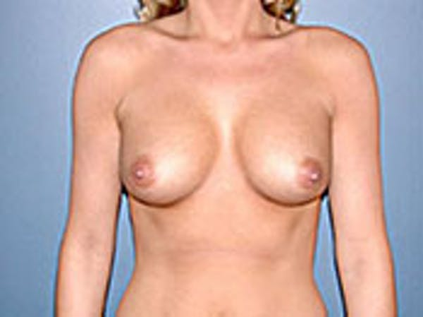 Breast Augmentation Gallery - Patient 4594805 - Image 2