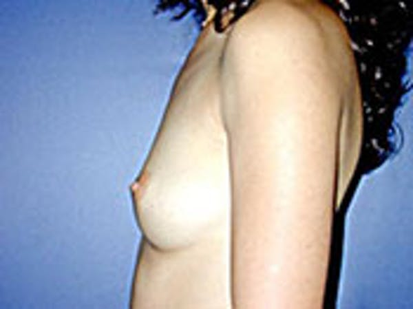 Breast Augmentation Gallery - Patient 4594800 - Image 5