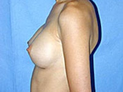Breast Augmentation Gallery - Patient 4594800 - Image 6