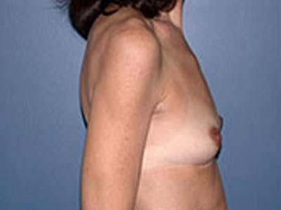 Breast Augmentation Gallery - Patient 4594808 - Image 1