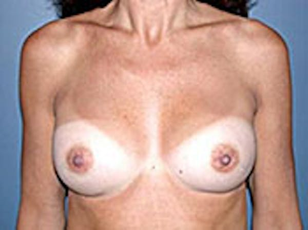 Breast Augmentation Gallery - Patient 4594808 - Image 2